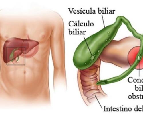 Cálculos Biliares (Colelitíase)